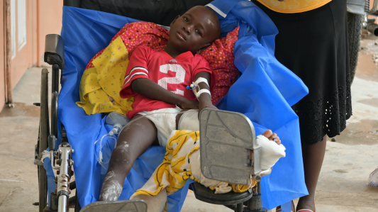 A young boy sits in a wheelchair with his left leg held up. He sits on a dark blue blanket. He wears a red shirt and his left leg is bandaged.