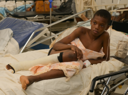 A young boy lies in a hospital bed with a leg injury. He is covered by an orange and white blanket. His right leg is wrapped in a bandage below the knee.